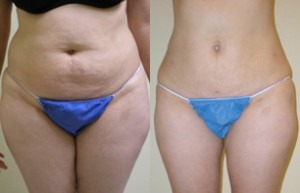 SlimLipo Before & After Photo 1