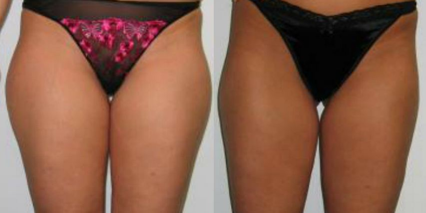 SlimLipo Before & After Photo 4